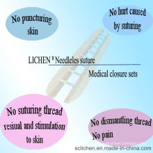 Alle Arten Chirurgische Naht Keine Nadel Einweg Medizinische Geräte