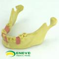IMPLANT08 (12619) Oral Implant Dental Training Modell für fehlende Zahnimplantate