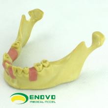 IMPLANT08 (12619) Modelo de entrenamiento dental con implantes orales para implantes dentales faltantes