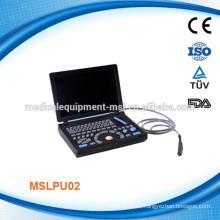 Máquina llena del ultrasonido del ordenador portátil de Digitaces MSLPU02-M