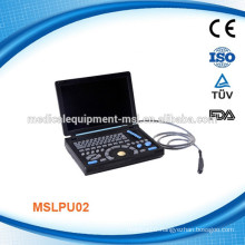 Full Digital laptop ultrasound machine MSLPU02-M