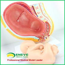 ANATOMY10 (12448) Medicina clínica Embarazo Pelvis - 40 Semana Infantil, Modelos de Anatomía Embarazo Pelvis con Feto Maduro
