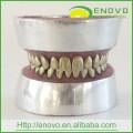 АН-Е11 металлические зубы модель практика удаления зуба для врача предоперационной практике