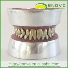 EN-E11 Modelo de práctica de extracción de dientes de dientes de metal para la práctica preoperatoria del médico