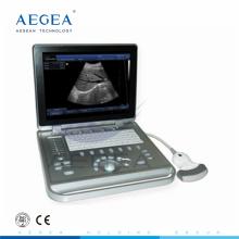 AG-BU009 Krankenhauspatientenuntersuchung B Ultraschallgerät B Ultraschallgerät