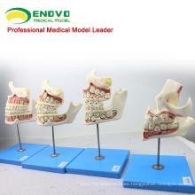 DENTAL22 (12604) Modelo de desarrollo de los dientes del feto de los niños de Huamn con 4 modelos dentales de las piezas