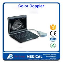 Portable Laptop voll digitale Ultraschall-Scanner Maschine PT3000d1