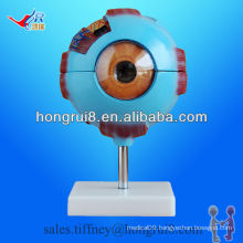 ISO Detachable Eye Anatomy model, Amplified Eyeball Model