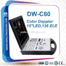 sistema pc escáner de ultrasonido doppler color DW-C60 marca DAWEI y escáner de ultrasonido Doppler color portátil de pantalla de 15 pulgadas LED