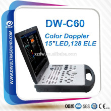 pc system color doppler ultrasound scanner DW-C60 DAWEI brand & 15 inch LED screen laptop color doppler ultrasound scanner