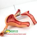 ANATOMY04 (12442) Modèle anatomique de structure utérine, modèles d'anatomie> Système reproducteur