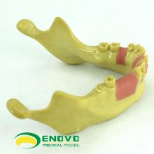 VENDER 12619 Modelo de Entrenamiento de Dientes Perdidos en Implantes Dentales