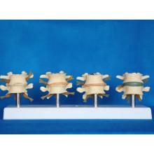 Modèle de squelette de l'anatomie médicale lombaire spinale humaine (R020704)