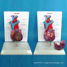Modèle médical de démonstration anatomique cardiaque avec description (R120107)