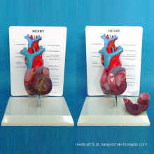 Modelo analógico de demonstração anatômica do coração com descrição (R120107)