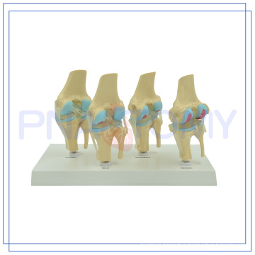 PNT-0141 life size Knee joints synthesis model