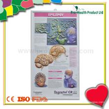 Эпилепсия 3D Анатомическая медицинская карта Поставщик