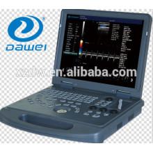 ultra-sonografia vascular com doppler e com doppler colorido de coração OB / GNY