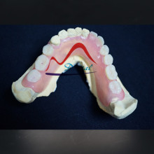 Mega Valplast Flexible Denture