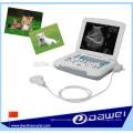 échographie d'ordinateur portable vétérinaire et scanner portatif d'ultrason d'utilisation d'animal