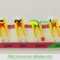 АН-М7 демонстрация кариеса взрослых развивается модель зуба для образования