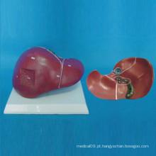 Modelo de Anatomia do Fígado Humano do Ensino Médico (R100103)