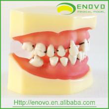 Modèle dentaire de la maladie parodontale EN-L4 avec la gencive molle démontable