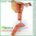 VENDRE 12473 Modèle pathologique utérin féminin de science médicale humaine