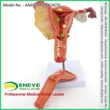 Verkaufen Sie 12473 Human Medical Science weiblich uterines pathologisches Modell