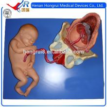ISO Демонстрационная модель родов