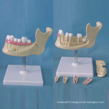Human Tooth Location Structure Anatomy Model for Teaching (R080113)