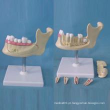 Estrutura de localização do dente humano Modelo de anatomia para o ensino (R080113)