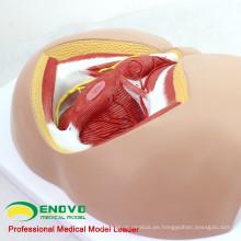 ANATOMY25 (12463) Medicina clínica Anatomía y biología de la vida humana Modelo masculino de perineo médico