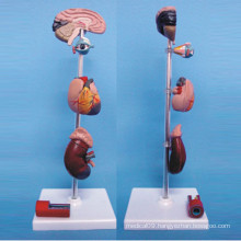 Pathological Human Anatomical Model for Medical Teaching (R110307)