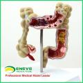 INTESTINE01 (12533) Anatomisches Darmmodell der medizinischen Wissenschaft