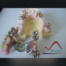 Dental Nice Looking Telescopic Crown