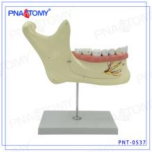 PNT-0537 Modelo de dentes dentais de maxilar inferior alargado