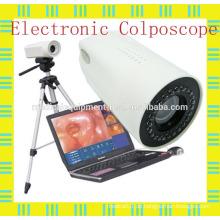 Digital Laptop Colposcope für gynäkologische / vaginale & uterine Diagnostik / Chirurgie