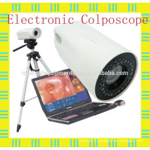 Digital Laptop Colposcope for Gynaecological/vaginal & uterine diagnosis/surgery