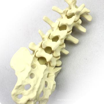 TF02 (12313) Orthopaedic Lumbar Sacrum Skeleton Practice Educational Model
