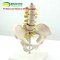 PELVIS06 (12343) Halbe Life-Größe Becken mit 5pcs Lendenwirbelsäule Anatomie Modell, Lumber Vertebrae Modell