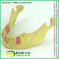 VERKAUFEN 12619 Zahnimplantat fehlt Zähne Training Modell