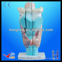 VIVID 3 times enlarged anatomical larynx throat model
