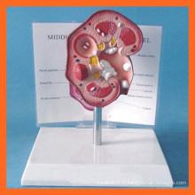 Modèle médical de rein Modèle anatomique de pierres rénales