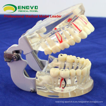DENTAL07 (12566) Modelo de dientes patológicos adultos transparentes para estudio dental y comunicación