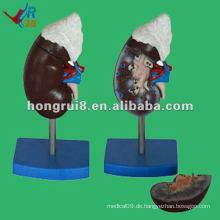ISO 2012 Menschliche Niere mit Adrenal Modell HR-310-3