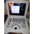 2D portable ultrasound machine and ultrasound scanner laptop
