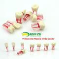TOOTH04 (12577) Modelo de dente endodôntico com canal radicular manchado para treinamento de preenchimento de cânula radicular, dentes endo