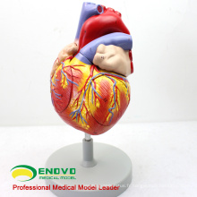 Exemple de commande pour BA Turquie - 2x Anatomical Heart Anatomical Model