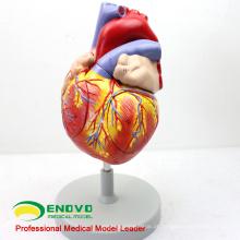 HEART04 (12480) Ciência Médica Modelo Anatômico do Coração Humano